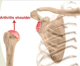 Arthritis shoulder
